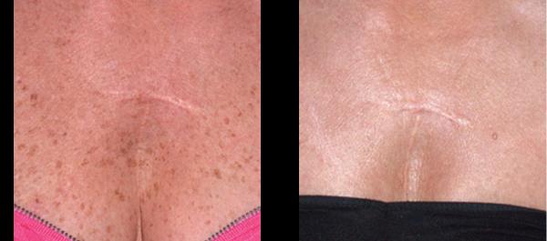 fjernelse af hår med laser